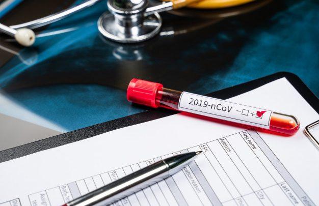 480 человек в Республике Алтай обследованы на коронавирусную инфекцию. Случаев заболевания не установлено